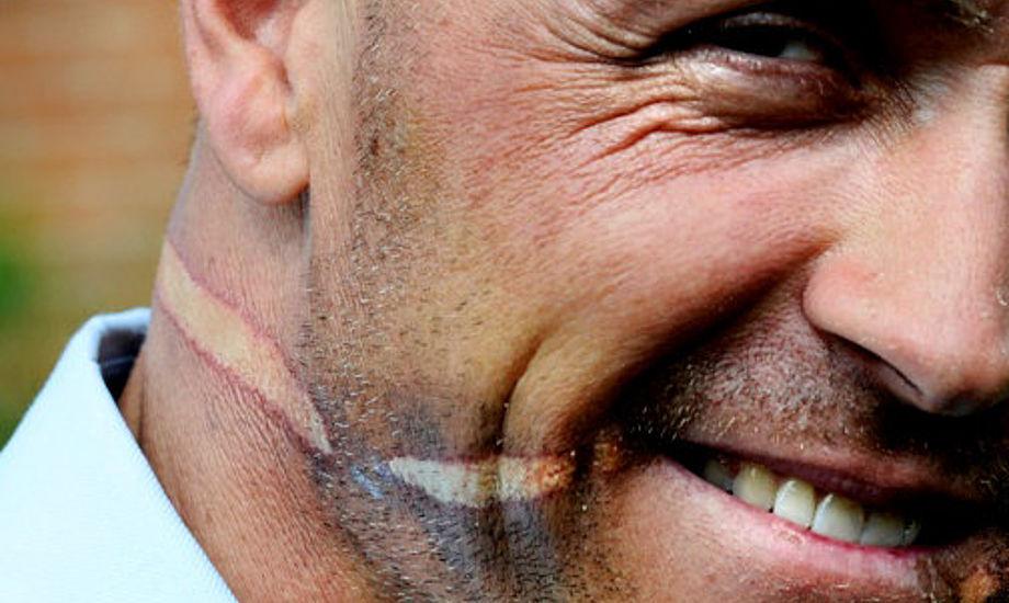 Mikkel Hartvig Andersen slap med blødende mundvige og et 270 grader brændemærke rundt om hovedet og på tværs af tungen, skriver Jyllands-Posten. Foto: Mikkel Hartvigs Facebookprofil